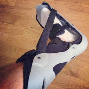 Example's Foot